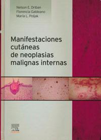 producción editorial de las manifestaciones cutáneas de neoplasias malignas internas