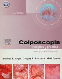 traduccion-medica-Colposcopia
