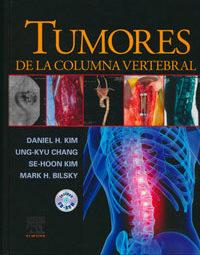 traducción médica de tumores en la columna vertebral